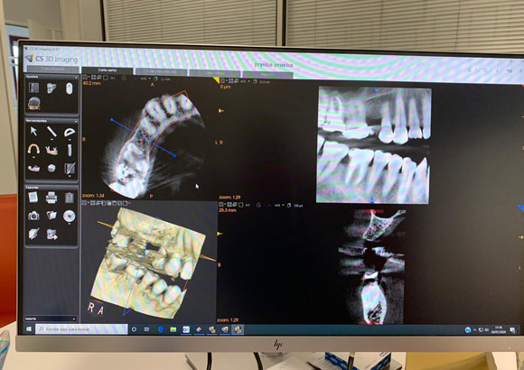 Escáner Carestream 3D
